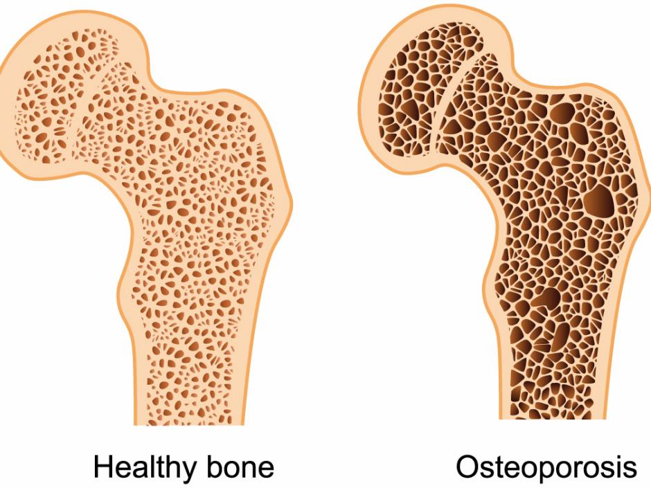 Treating Osteoporosis the natural way